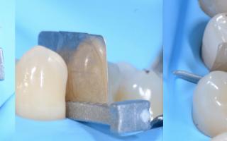 Тефлоновая лента при реставрации зубов